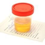 Какие факторы вызывают появление белка в моче после родов и что предпринять в такой ситуации