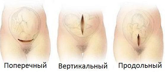 Разрезы
