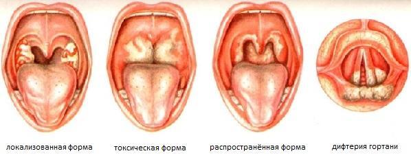 Разновидность дифтерии