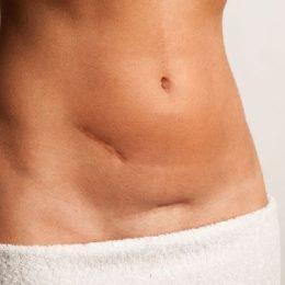 Симптомы и причины появления спаек после кесарева сечения