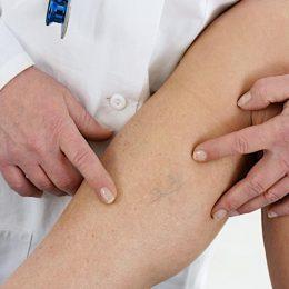 Варикоз при беременности: виды, симптомы, лечение