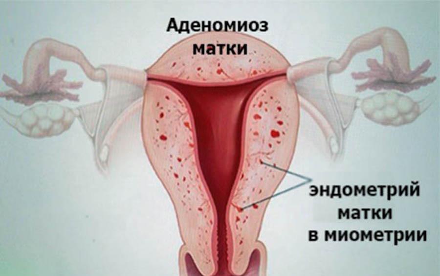 Схема распространения аденомиоза в матке