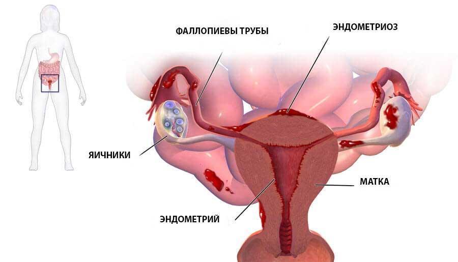 Строение матки и придатков