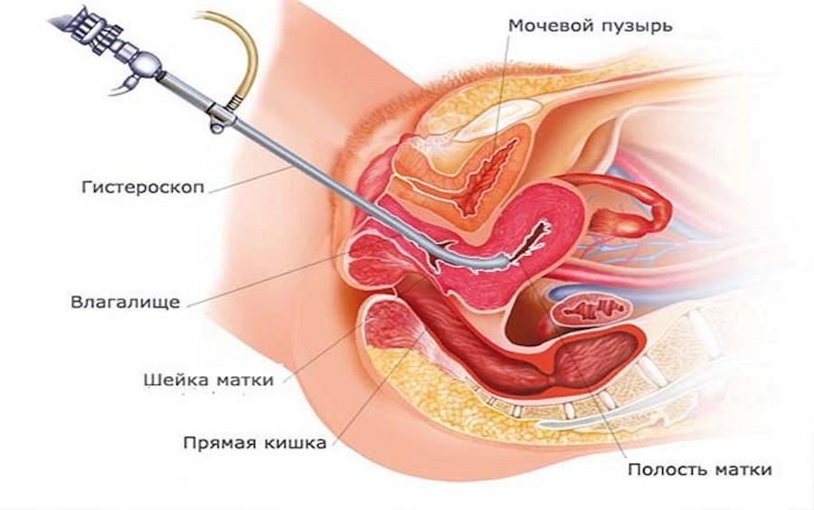 Схема выполнения гистероскопии
