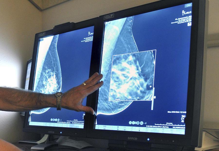 Снимки мамографии
