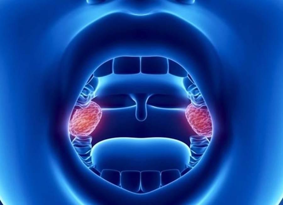 Воспаленные миндалины в полости рта