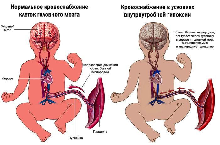 Схема нарушения внутриутробного кровообращения, приводящего к асфиксии и ишемии тканей и клеток плода