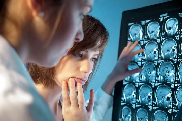 Изучение рентген снимков головы на предмет обнаружения кефалогематомы