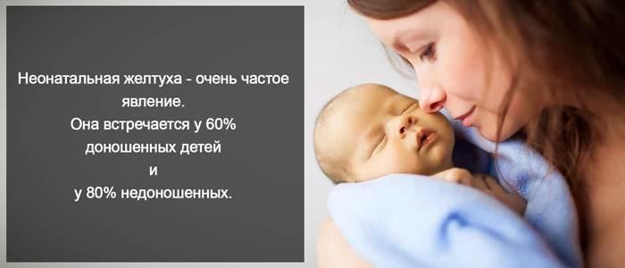 Статистика проявления желтухи у новорожденных