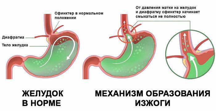 Механизм образования рефлюкса при изжоге у беременных женщин